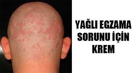 yagli-egzama-icin-krem